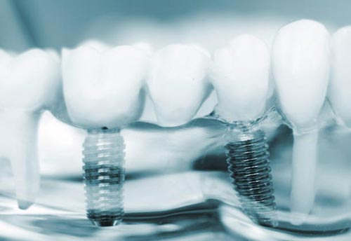 implant-dentar-in-Bucuresti